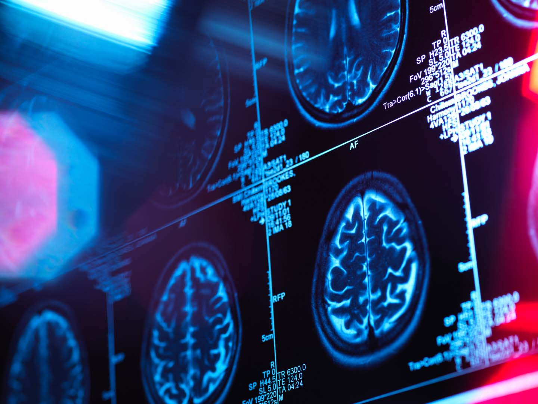 principles of behavioral neuroscience ucla continuing education